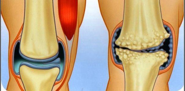milyen gyógynövények a térd artrózisához