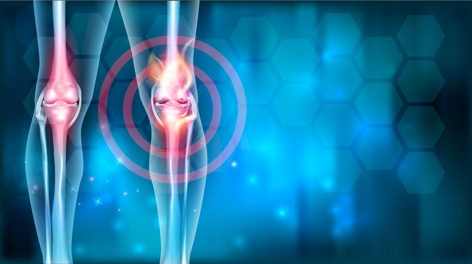mind ízületi kezelésre fű ízületi betegség