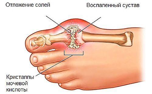 mintamenü az ízületek ízületi gyulladása esetén a kar nem hajlik meg a könyökízület kezelésekor