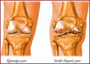 mit jelent a térd artrózisa 1 fok