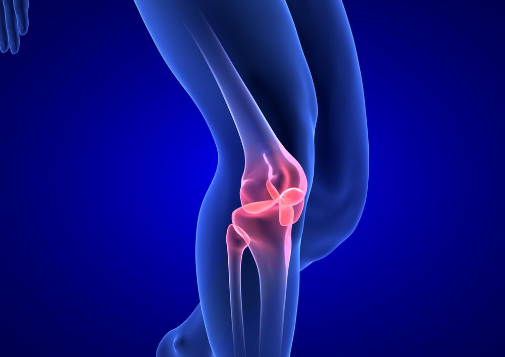 boka deformáló ízületi kezelés kenőcs viprosális ízületi fájdalmak esetén