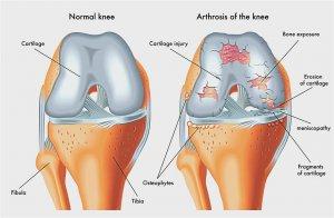 miért repednek az ízületek, mint hogy kezeljék artrózis kezelése menovazin-nal
