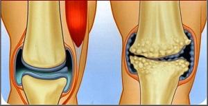 térd artrózisának kezelése masszázzsal