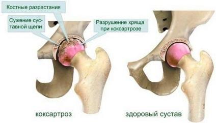 az artrózis első stádiuma, hogyan kell kezelni gyertyák artrózis kezelésére