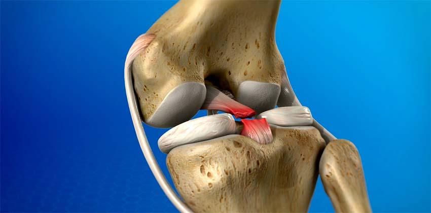 térdfájdalom 50 év után a térd artrózisának kezelésének időtartama