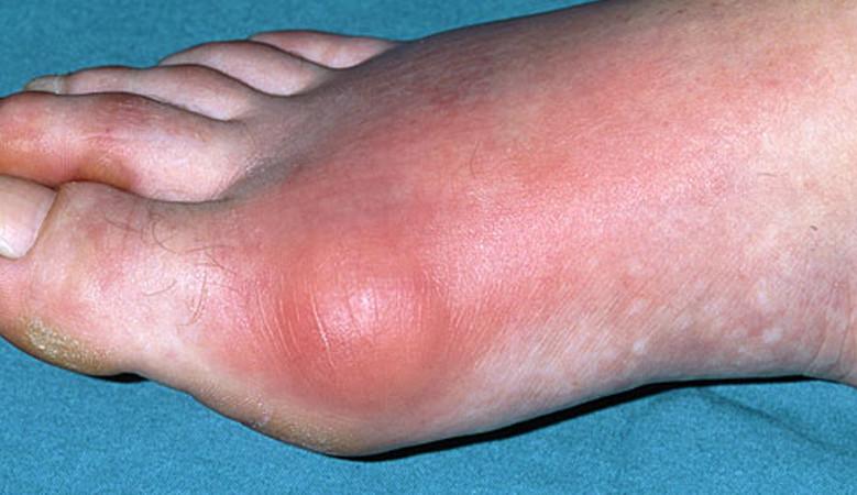 térdízület kiütés ízületi fájdalomkezelések