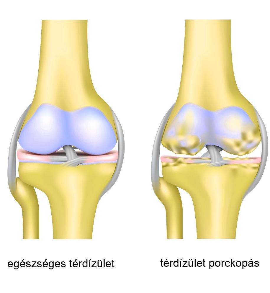 ízületi fájdalom fájdalom, mit kell tenni térdízület kezelés oldalsó ínszalagjának szakadás