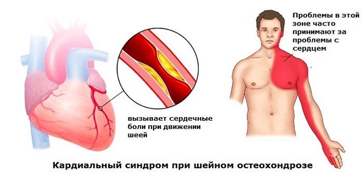 a térdízület fájdalma megsemmisítheti azt