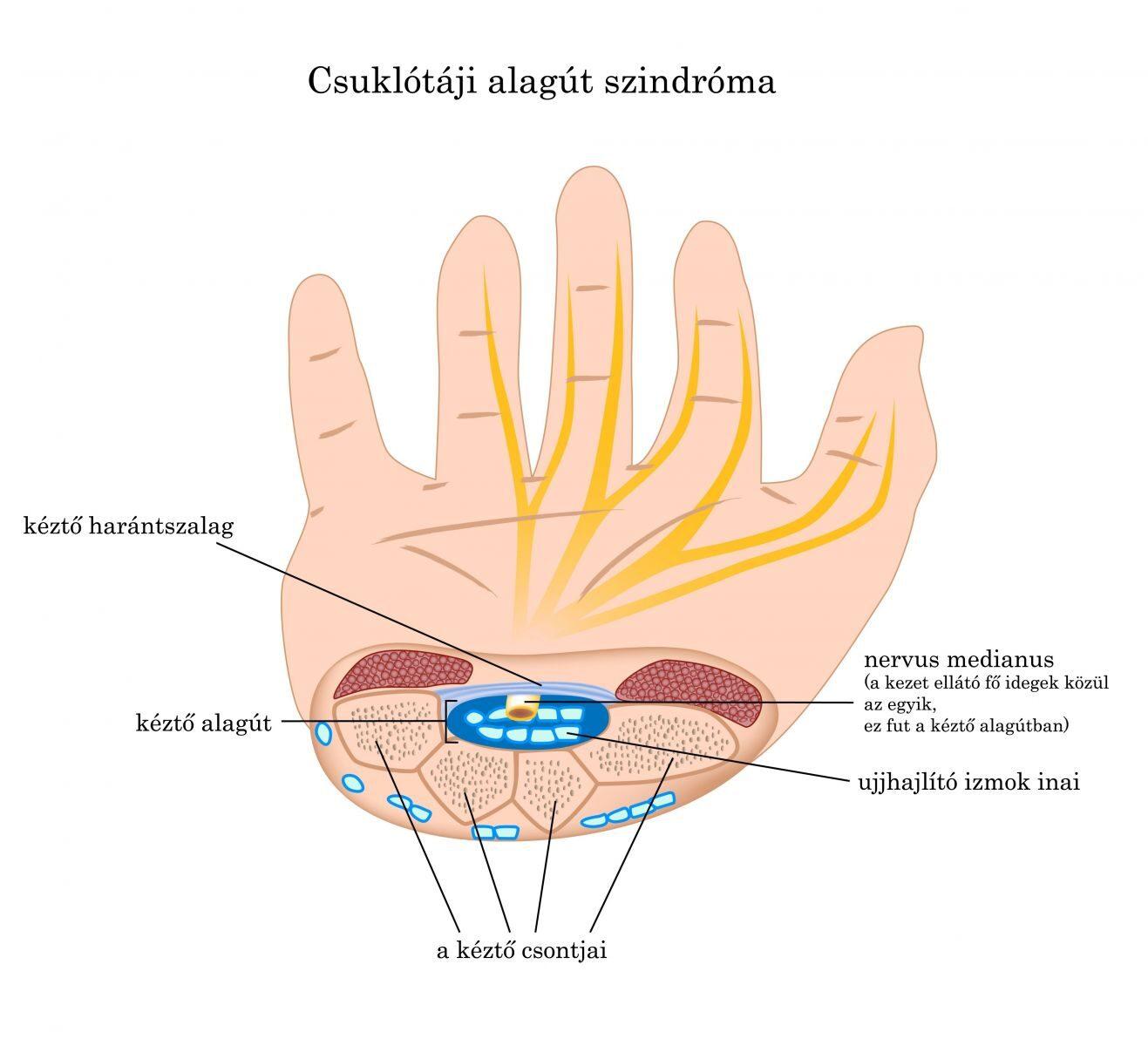 ujjgyulladás okai és kezelése