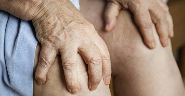 Kihült rheumatoid arthritis destruált ízületekkel, szekunder arthrosissal