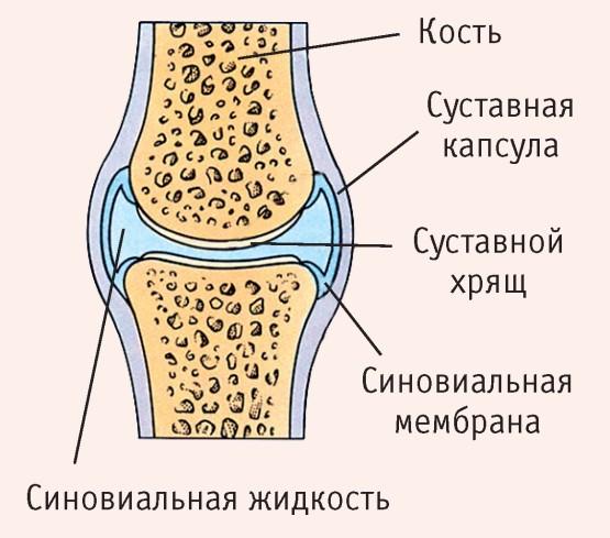 Köszvény, szubakut polyarthritises forma