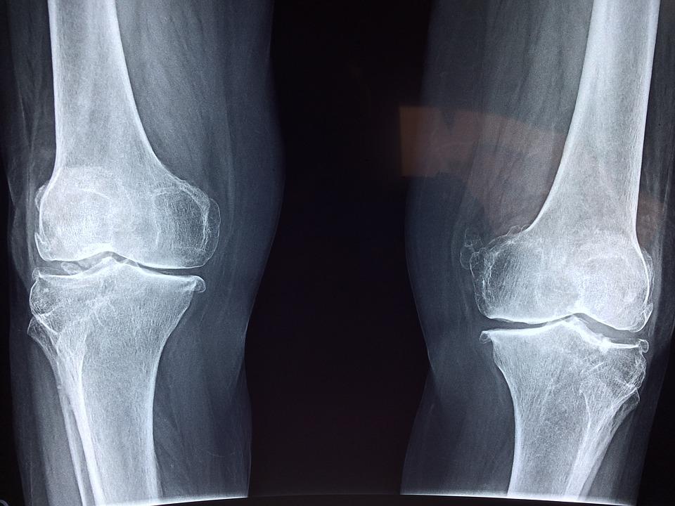 ízületek fájdalom és csodák nélkül chondroprotektorok a térdízület artrózisához 2 fokkal