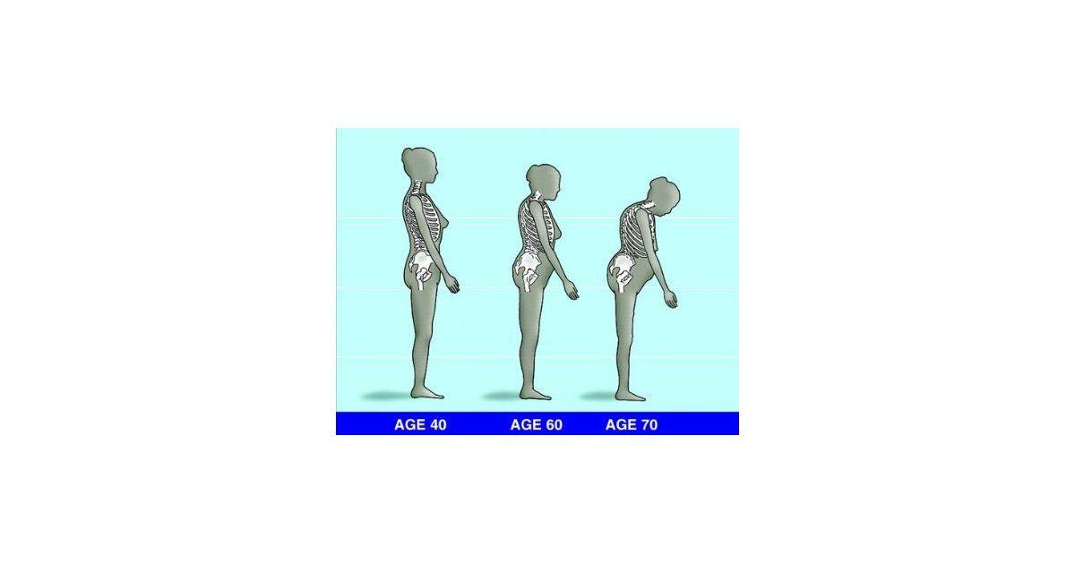 hogyan kell kezelni az ízület osteoarthritisét