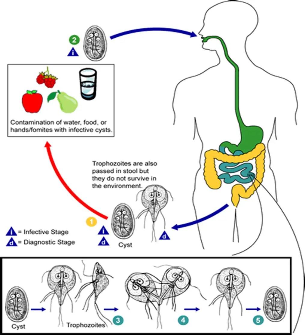 Giardia infection giardiasis)