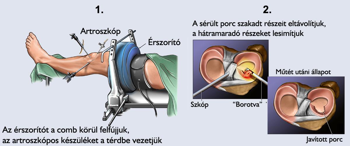ízületi fájdalom műtét után térd alatti gyulladás