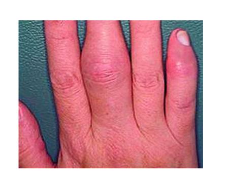 ízületi fájdalom és az ujjak duzzanata ízületi fájdalomcsillapítás nyújtás után
