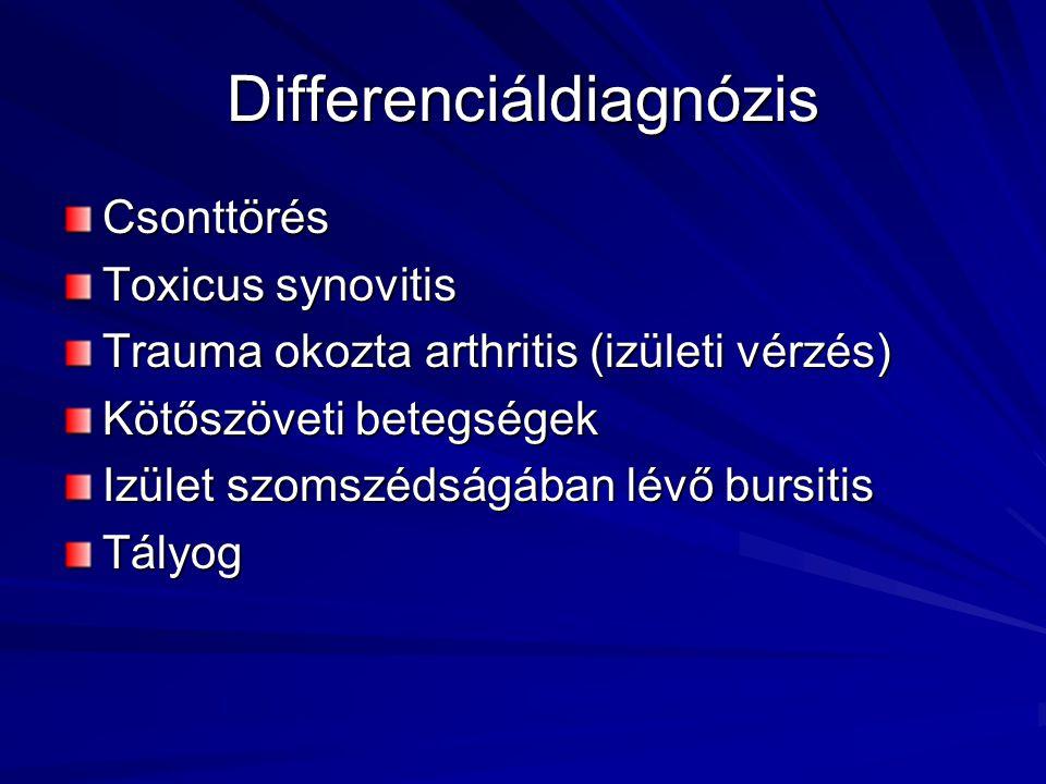 Hemorrhagiás vaszkulitisz - okok, tünetek és kezelés - Vasculitis July