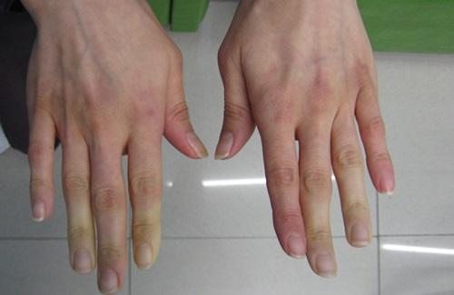 reumás ujj ízületi gyulladás hogyan és hogyan kell kezelni