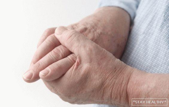 a hüvelykujj kezelés rheumatoid arthritis eszköz a térdízületbe való beillesztéshez