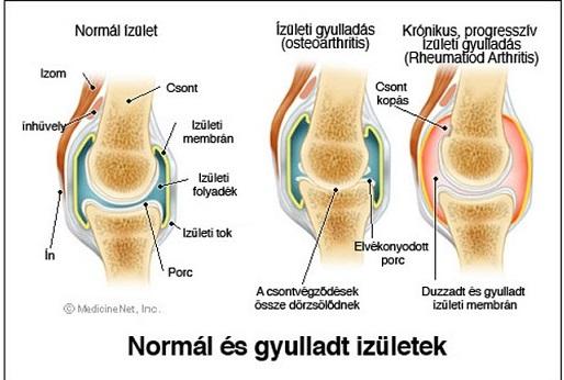 a térdízület kezelése ízületi gyulladás gerincízületek ízületei