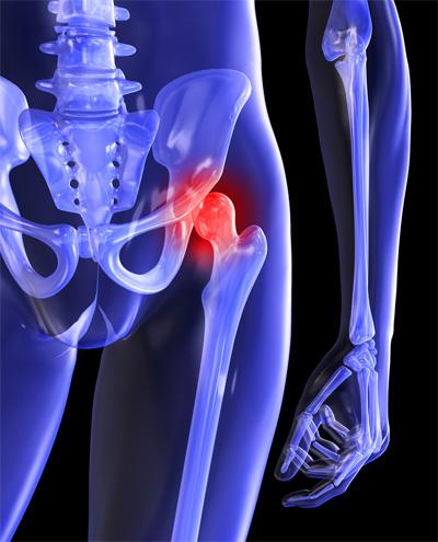 erős csípőfájdalom okai