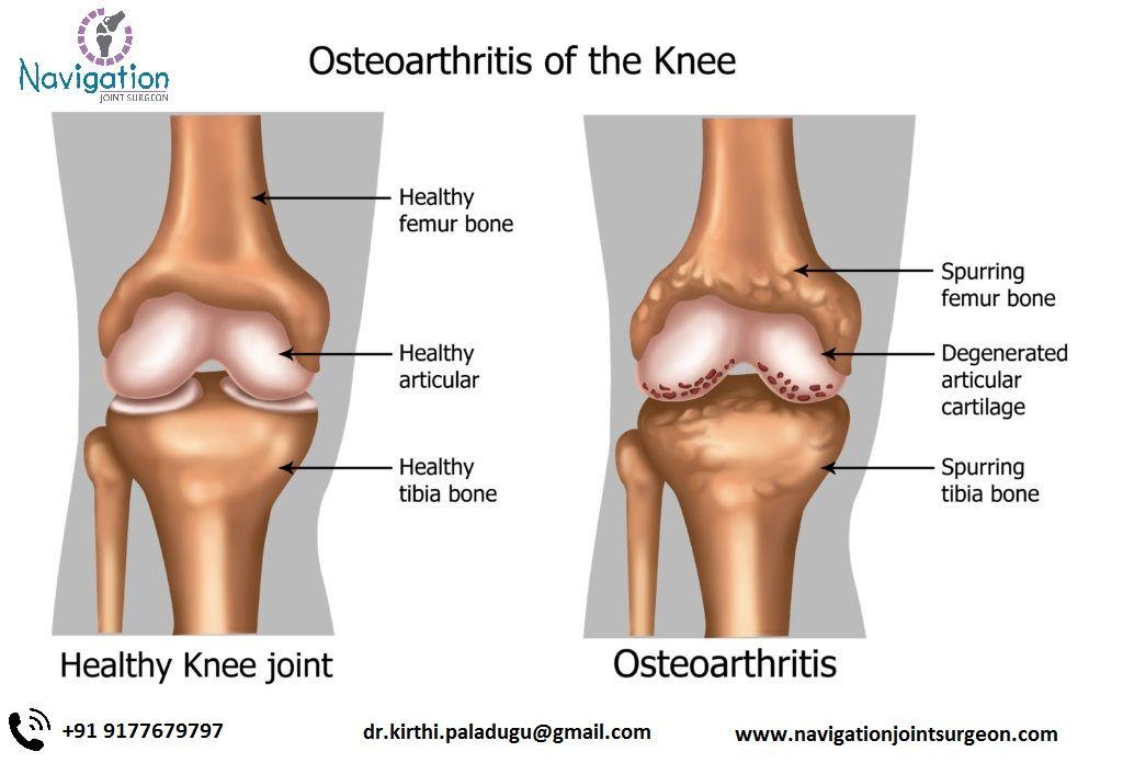 szárnyaló térd artritisz