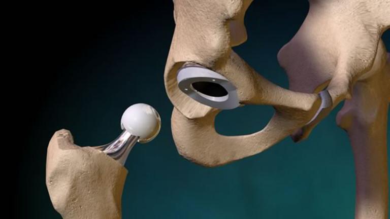 A csípő endoprotézisének diszlokációja: a tünetek és az endoprotetikum utáni kezelés