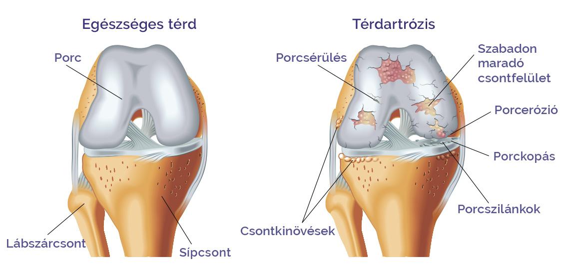 artritisz artrózis méhkezelés