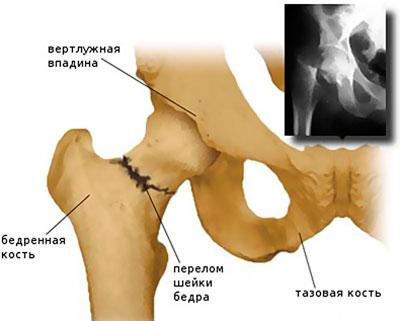 tartós fájdalom a csípőízületekben fájdalom a vállízület nyakában