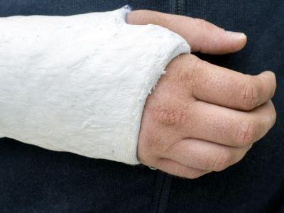 az ujjak ízületei fájnak és repednek