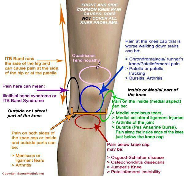 arthrosis 3ct kezelés