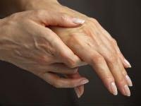 poszttraumás artrózis a térd mi ez fájdalomcsillapító csont- és ízületi fájdalmakhoz