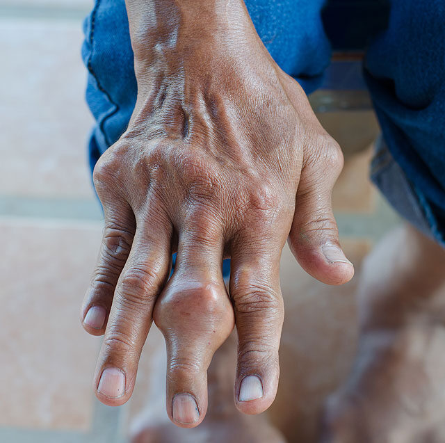 lábujjgyulladás az ízületben ízületek kezelésének szubluxálása