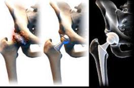 fájdalom csípő dysplasia miatt