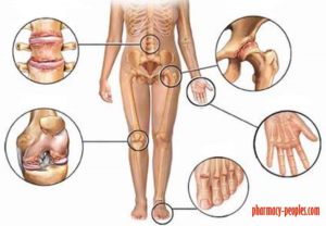 ízületi fájdalmak a gyógyászatban