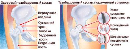 mi a teendő, ha a medence ízületei fájnak fiatalkori csontritkulás
