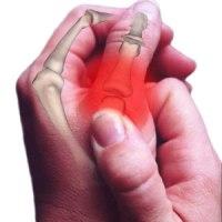 artrózis sárkezelése
