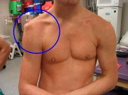 a vállízület törésének diszlokációja a térd reumás ízületi gyulladásának tünetei