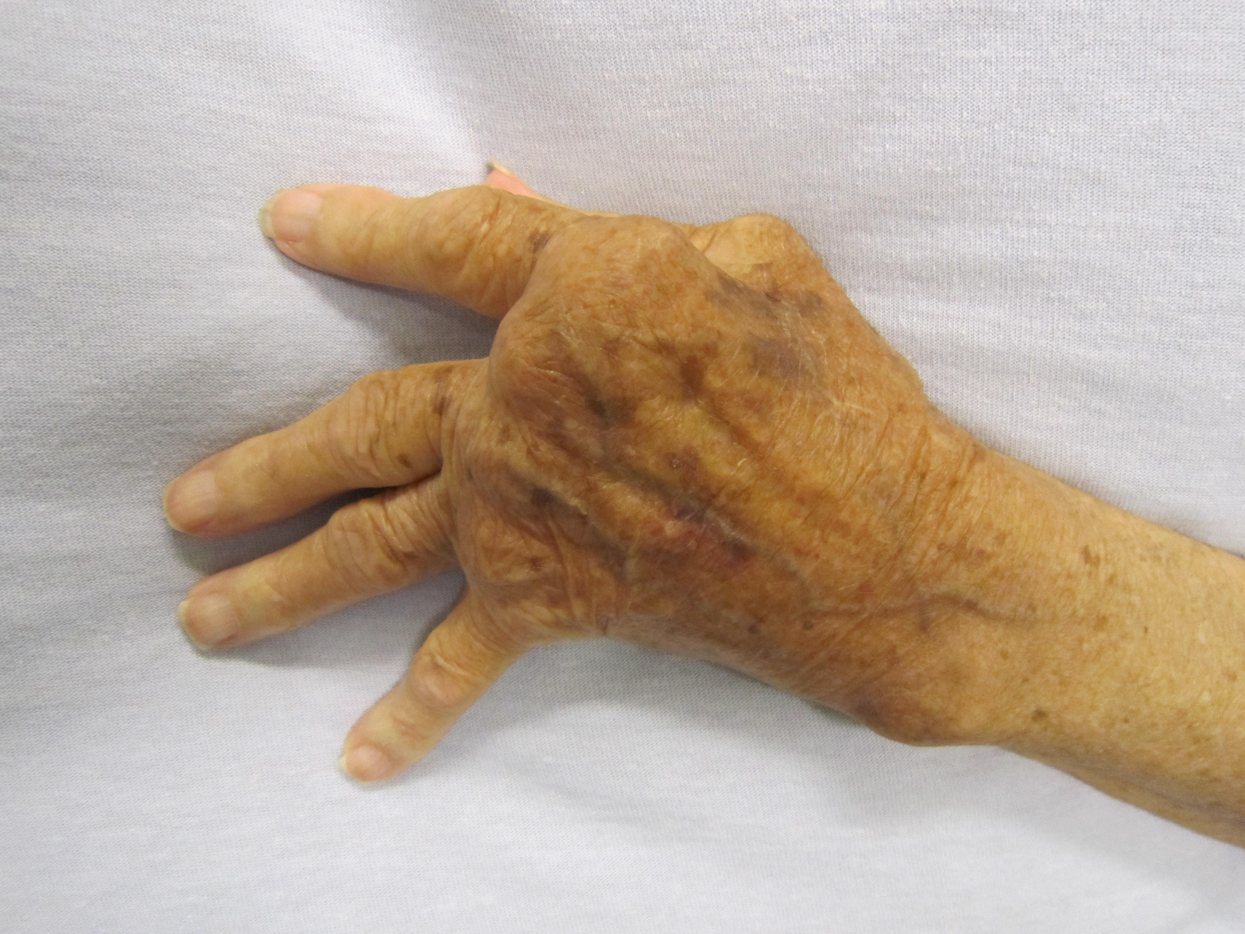a jobb kéz ízületeinek ízületi gyulladásainak kezelése gyakorolja a térd artritiszét
