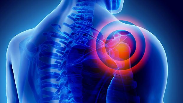 vállfájdalom okozza a kezelést ízületi kezelések együttes kezelése