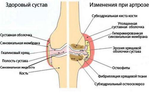 A láb tüneteinek és kezelésének osteoarthritisa