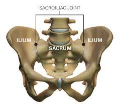 Sacroiliacalis ízület disfunkciója okozta derék és lábfájdalom - Súlypont Ízületklinika