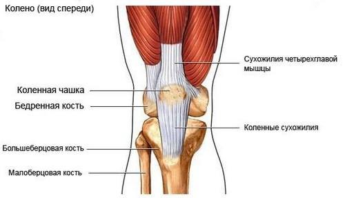 A térdízület artritisa (gonartritisz)