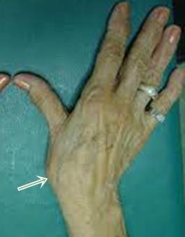 a hüvelykujj fáj az ízületben a csípőízület coxarthrosisának kezelése 3 fokos