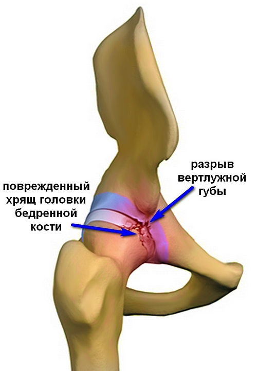 a vállízület törésének diszlokációja fájdalomcsillapítás a vállízület fájdalmáért