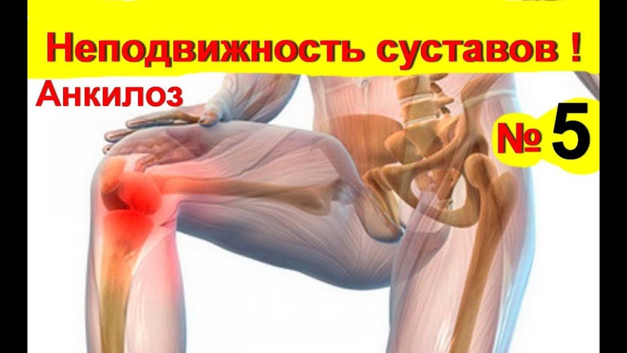 a bokaízület deformáló artrózisának kezelése