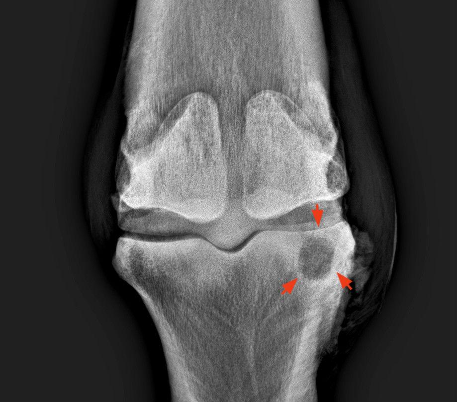 Elhúzódó, kínzó fájdalom - Csonthártya-gyulladás - PHOENIX Group