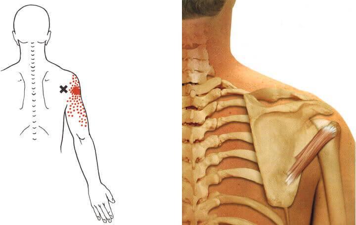 reumatológiai ízületi fájdalom ha a fájdalom a csípőben