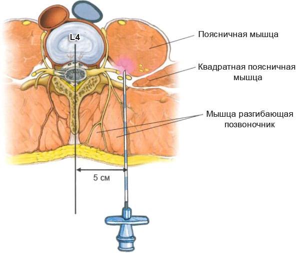 Az emlő fibroadenomatózis kezelésének tünetei és módszerei - Metasztázisok July
