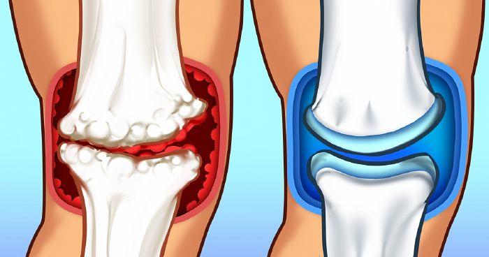 hidrokortizon az arthrosis kezelésében